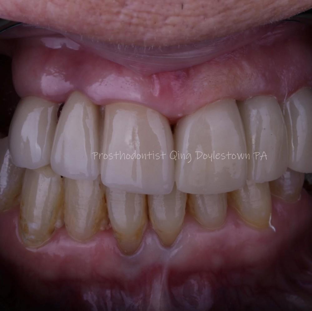 Dental Cosmetic Bridge