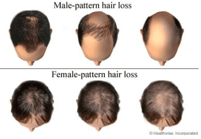 Here you can see the noticeable difference between male-pattern hair loss and women-pattern hair loss
