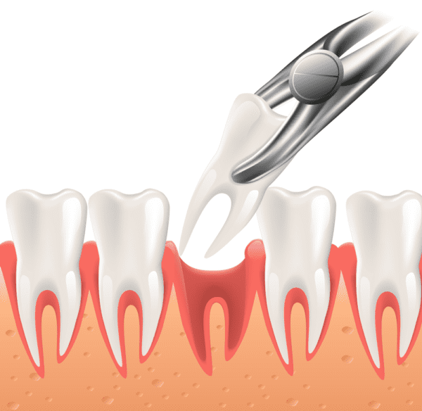 Tooth Extraction 33308