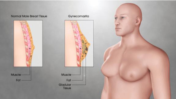 Normal breast tissue in comparison to the breast tissue of someone experiencing Gynecomastia