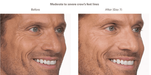 Moderate to severe crow's feet lines before and after bro-tox treatments.