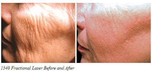 Before and after 1540 Fractional Laser treatment