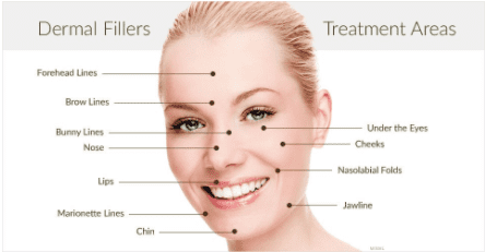 The after effects of Dermal Fillers as well as areas of treatment