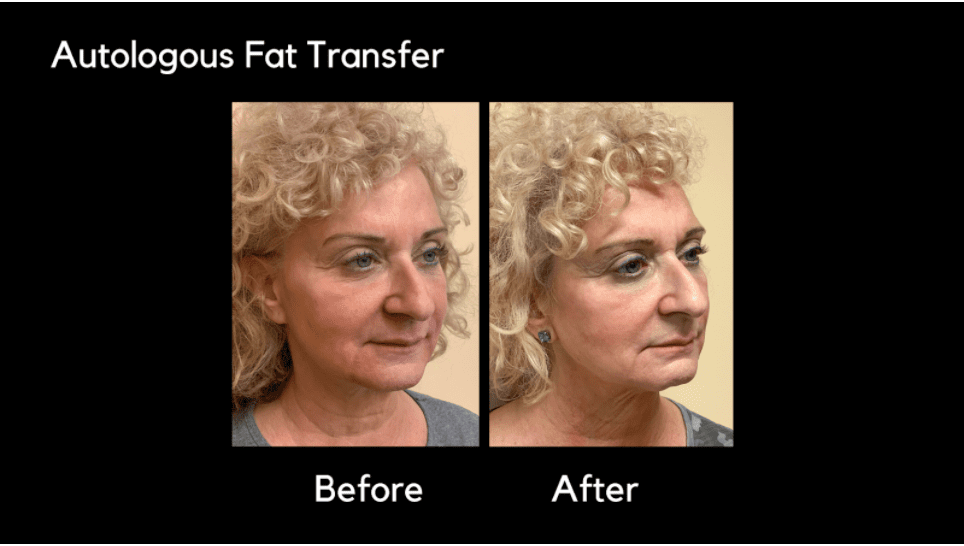 Before and after image of Autologous Fat Transfer procedure