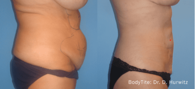 Before and after BodyTite procedure