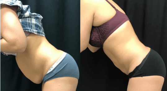 Before and after liposuction followed by BodyTite