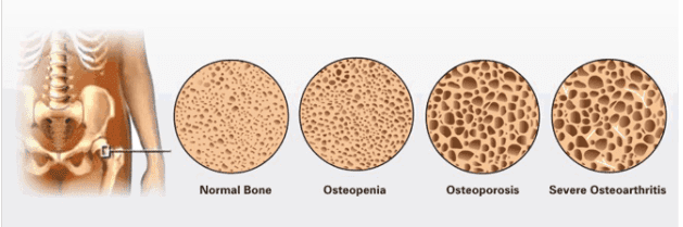 Normal bones in comparison to the bones of patients with Osteoporosis