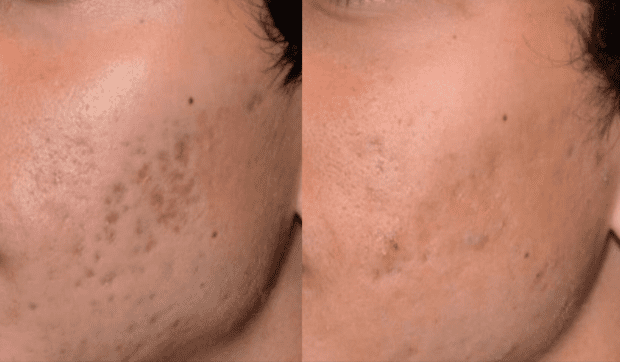 Before and after PicoSure treatment