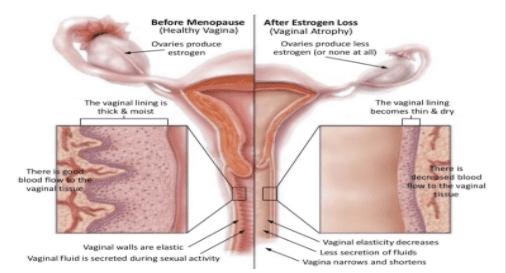 Before menopause (healthy vagina) and after estrogen loss (vaginal atrophy)