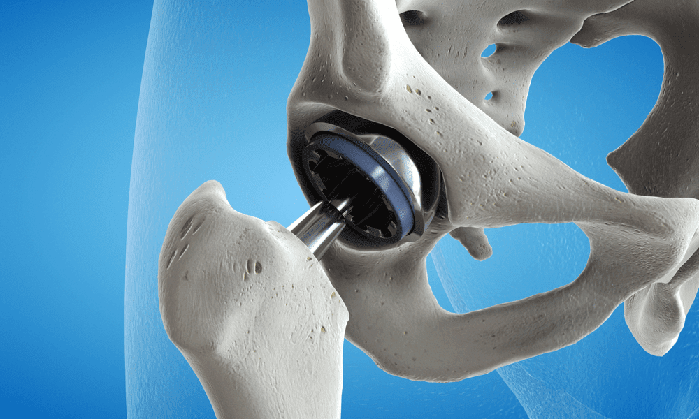 Hip replacement - cartilage and bone is being replacement with an artificial part.