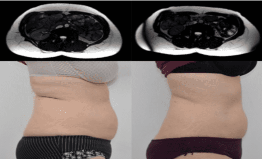 Before and after (HiFEM) procedure.
