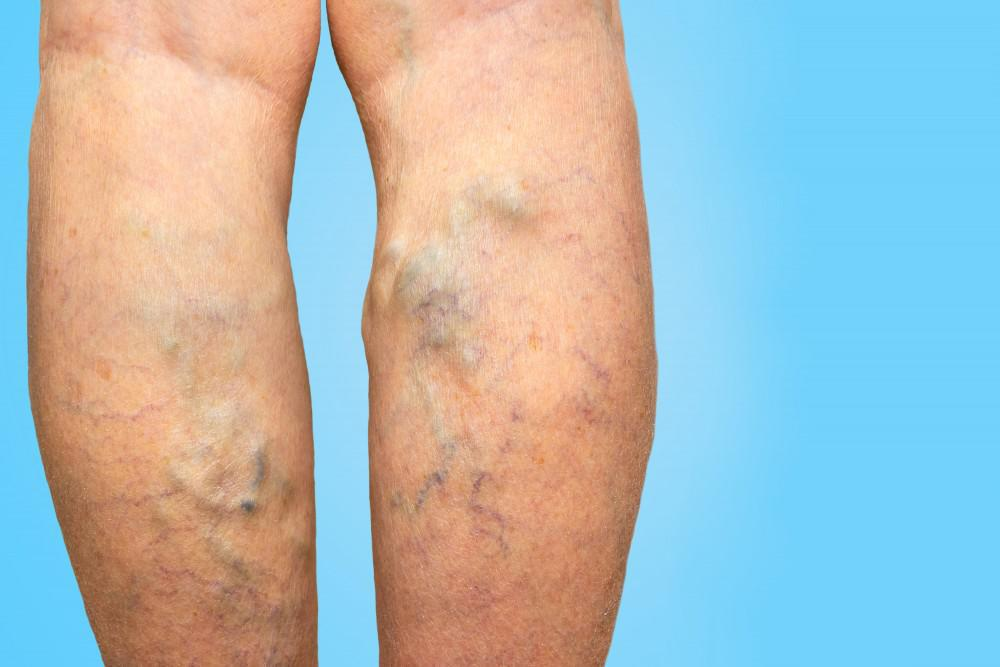 What to Do About Varicose Veins