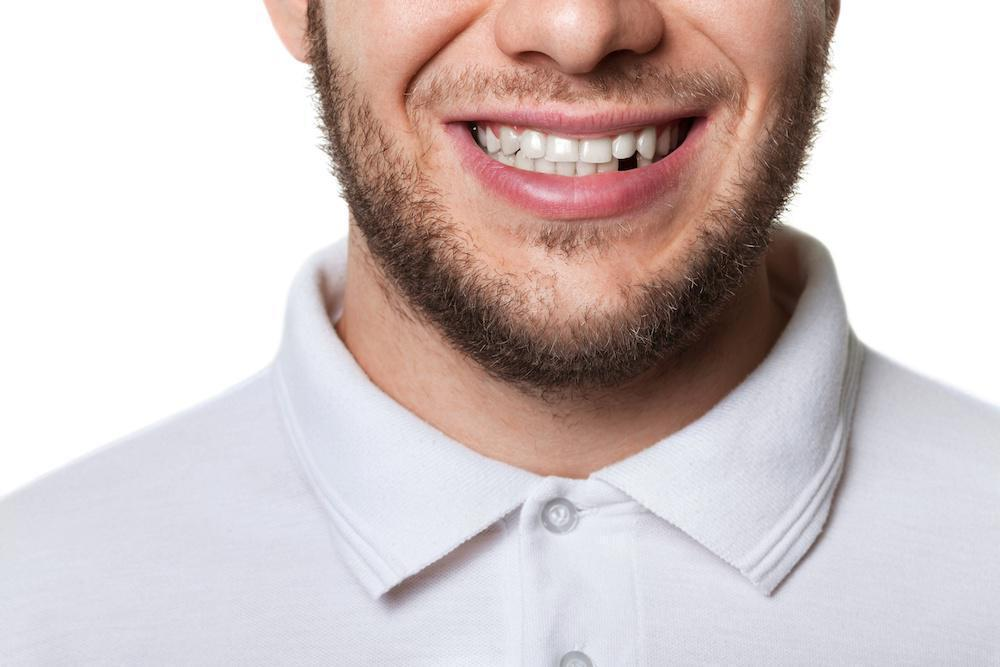 5 Benefits of Replacing Missing Teeth