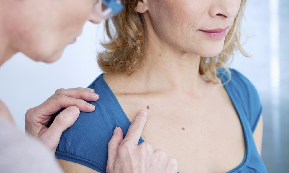 Understanding the Different Types of Skin Cancer