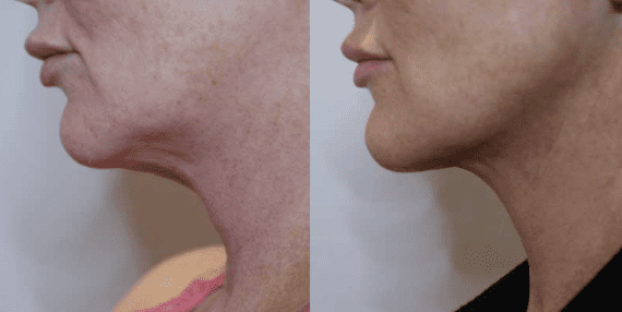 Before and after FaceTite treatment
