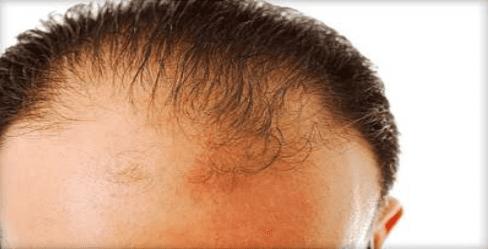 M-shape receding hairline