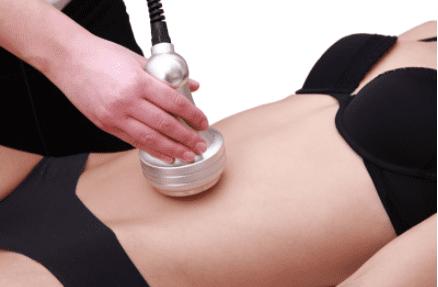 Cavitation liposuction procedure