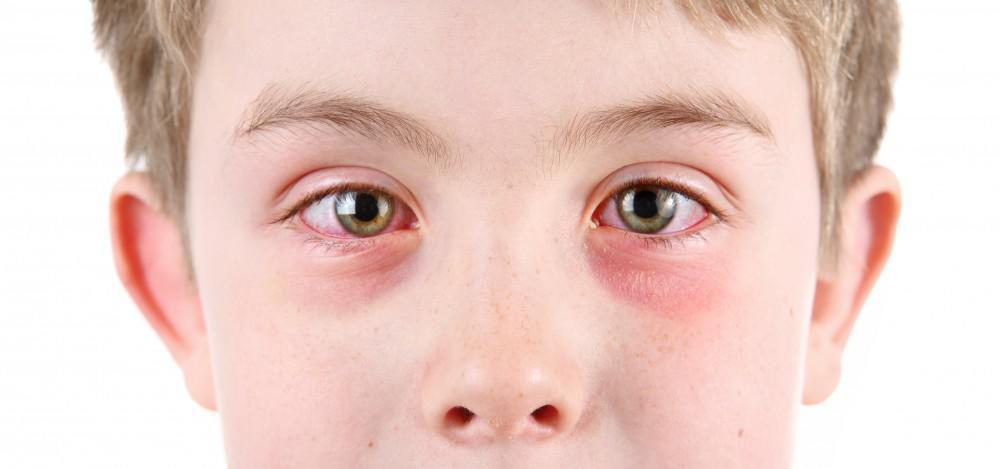 Is Pink Eye Contagious?
