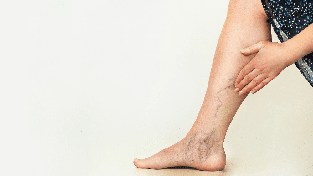 Consider these Benefits of Sclerotherapy