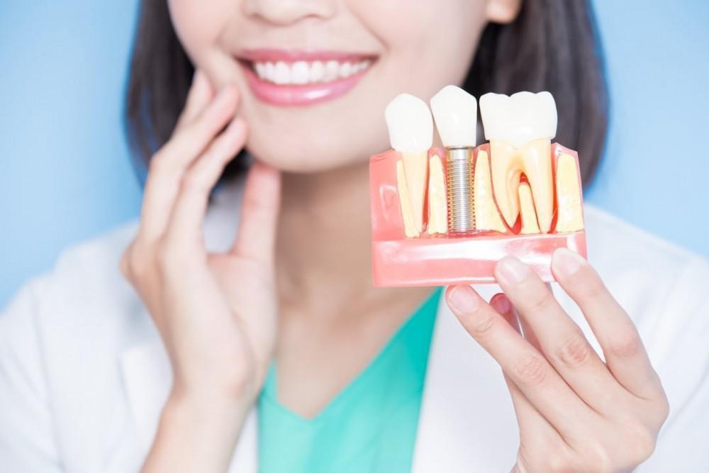 4 Benefits of Dental Implants