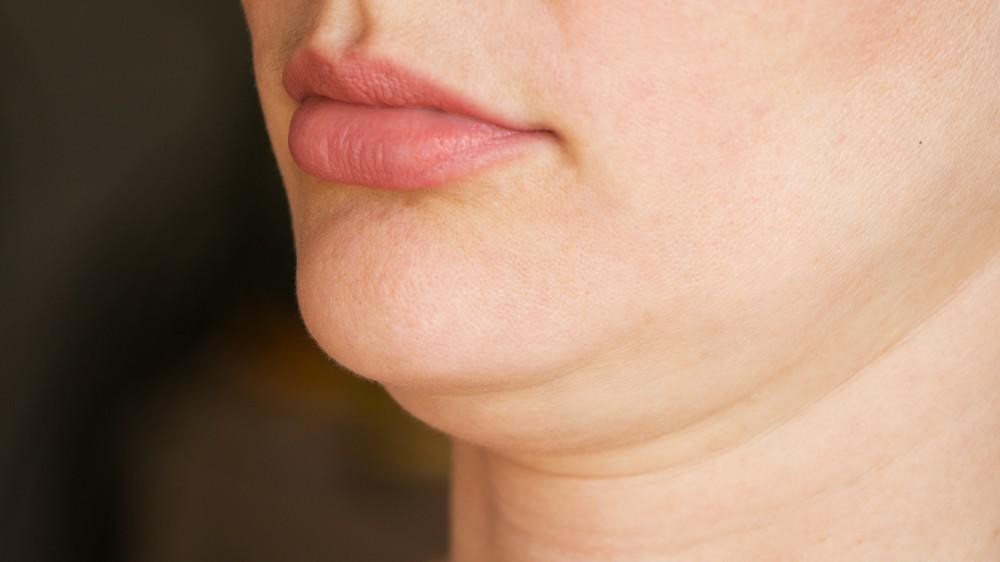 5 Possible Causes of a Double Chin