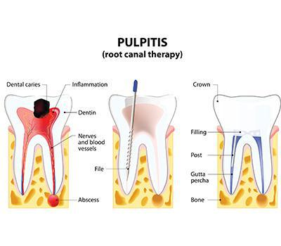 Is your Tooth Hurting You?
