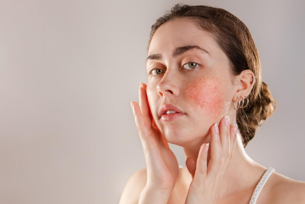 Help for Your Rosacea