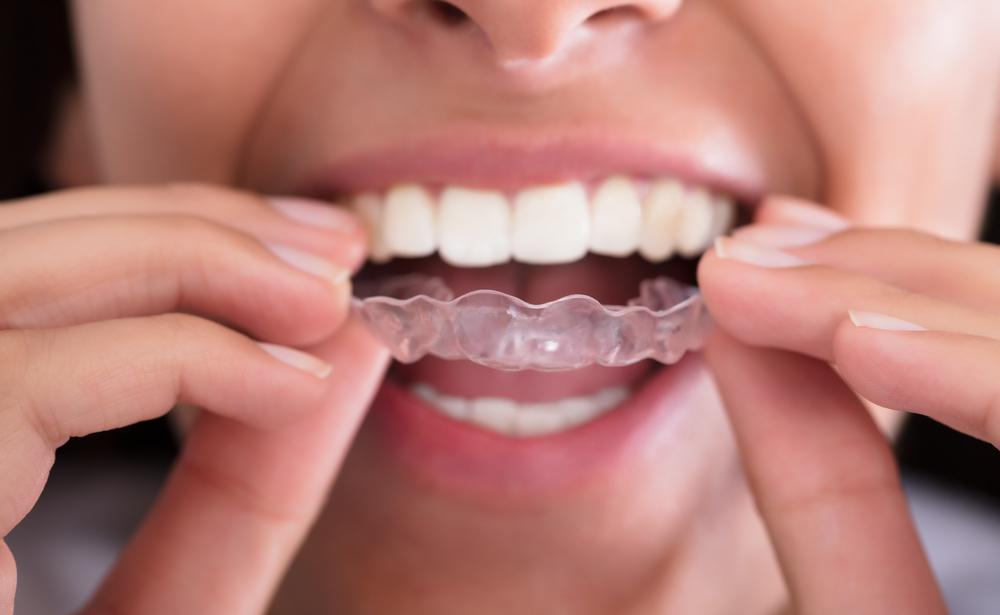 Why You Shouldn't Skip Wearing Your Invisalign Trays
