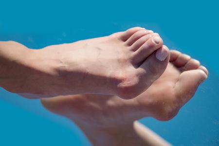 bunion and overlapping toes on bare foot