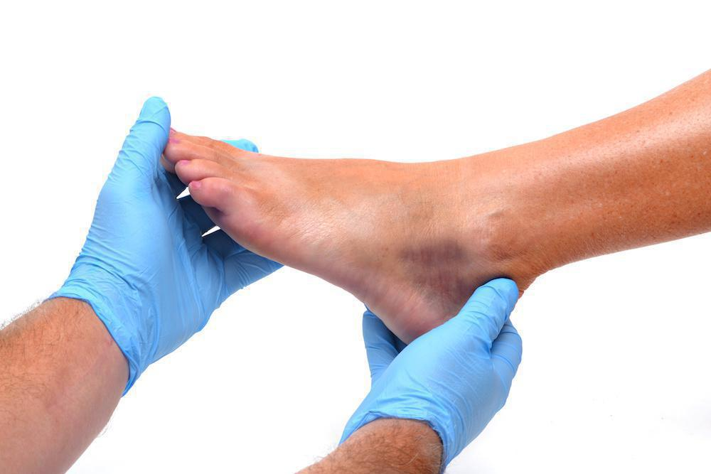 Diagnosing Foot and Ankle Injuries