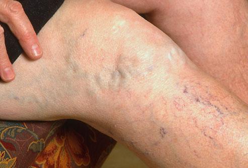 Are Varicose Veins a Health Threat?