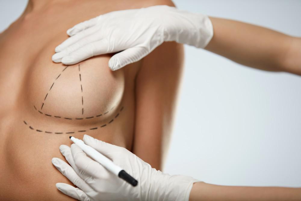 When Breast Revision Makes Good Sense