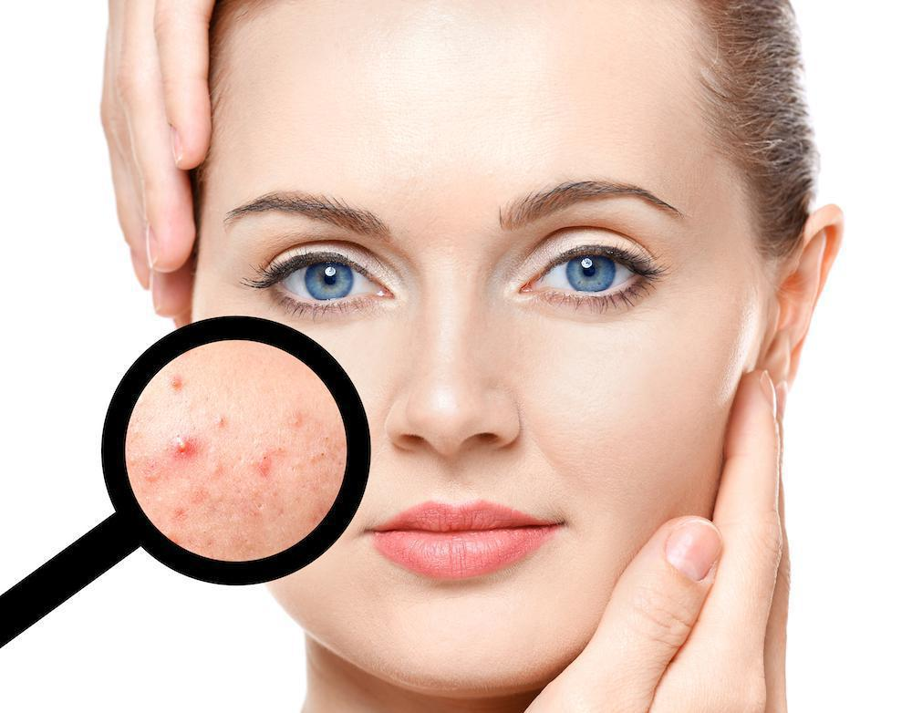 We Can Help If You're Embarrassed About Acne