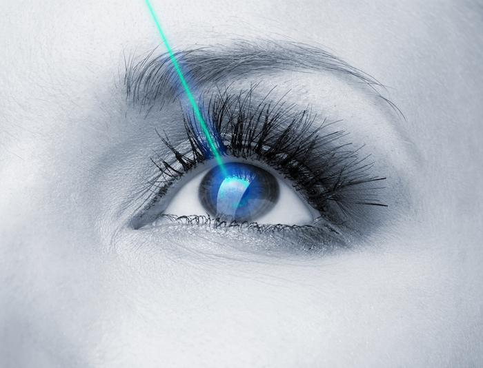 What Are the Benefits of Laser Eye Surgery?