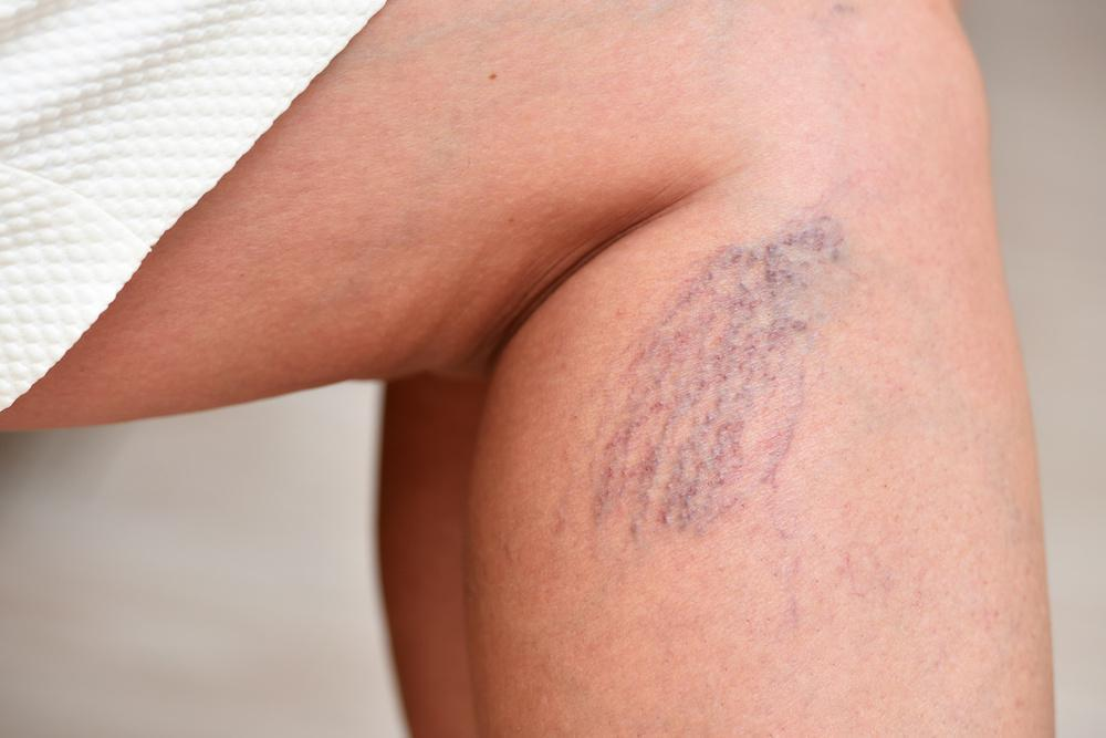 Bothered by Spider Veins? Consider Laser Therapy