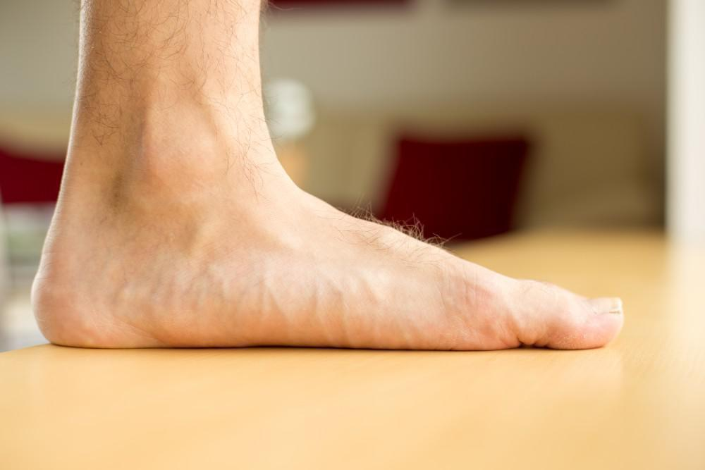 What Does It Mean If I Have Flat Feet?