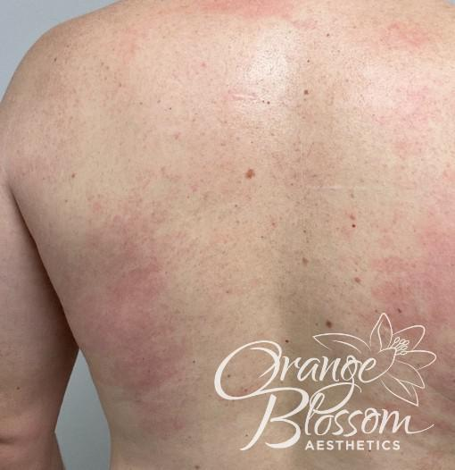 Gallery image about Laser Hair Removal