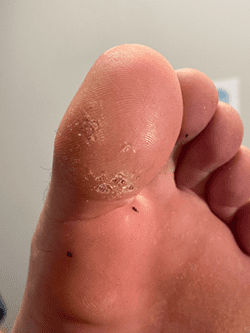 Gallery image about Swift Microwave Wart Treatment Before and After Gallery