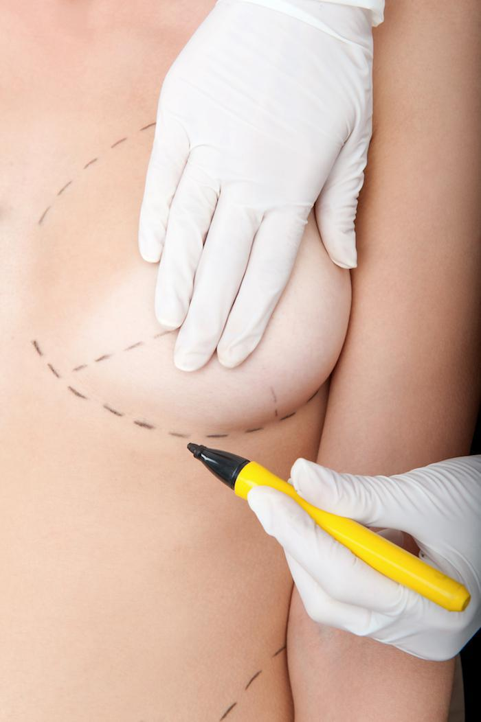 Non-Cosmetic Reasons to Consider Breast Reduction