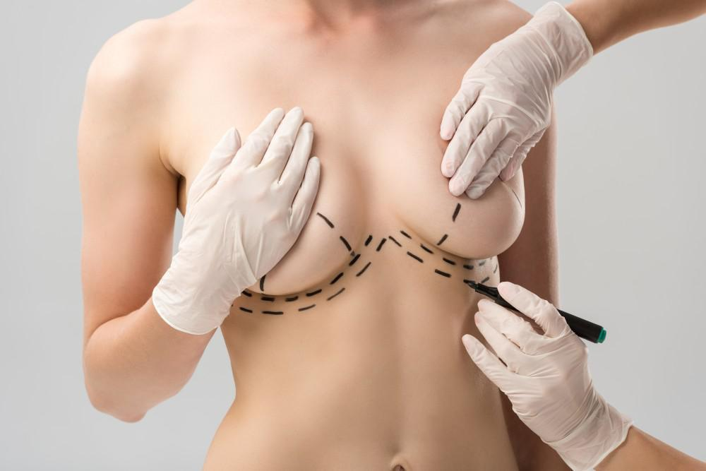 5 Surgical Options to Enhance Your Breasts