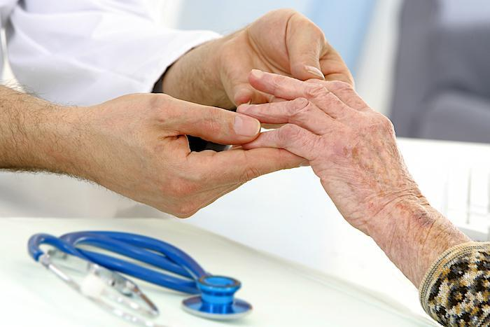 Why Treating the Symptoms of Rheumatoid Arthritis Is So Important