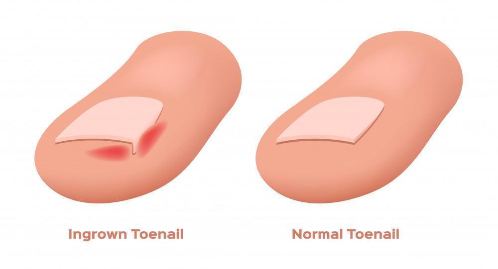 Common Causes of an Ingrown Toenail