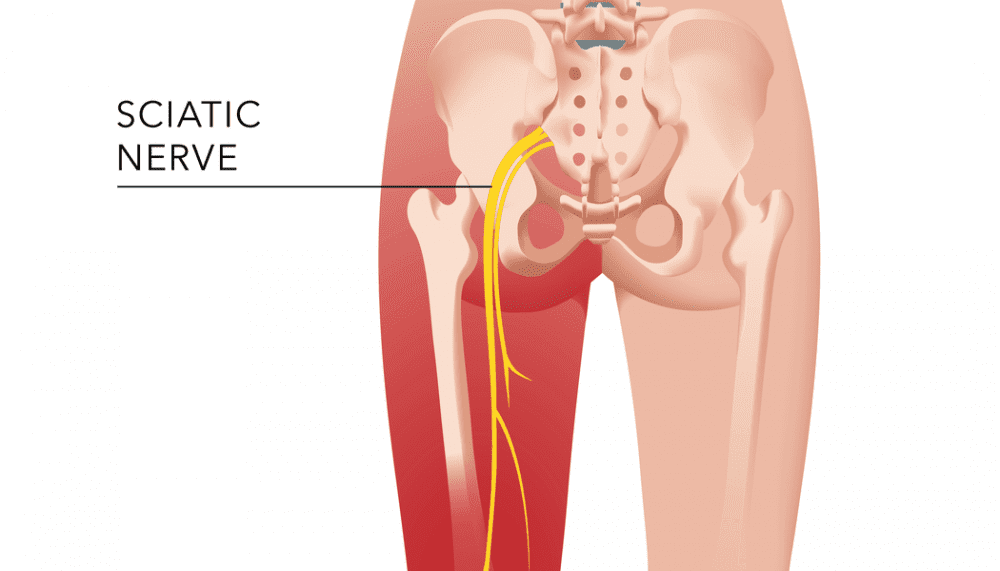 Pain from Sciatica