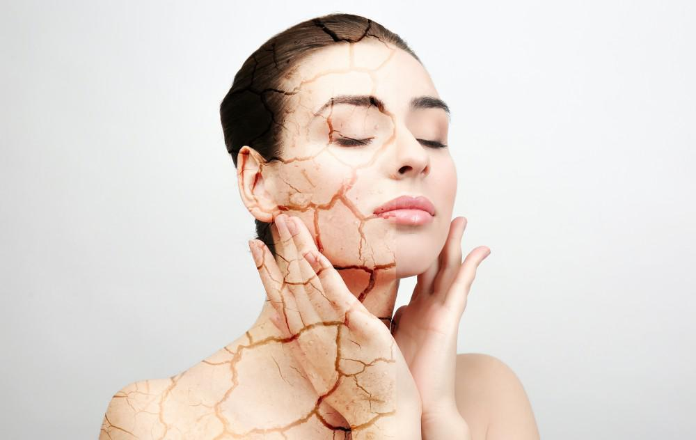 4 Ways to Care for Chronically Dry Skin
