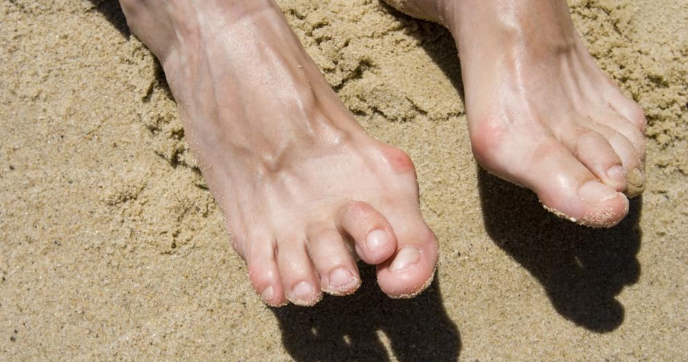 5 Effective Treatments for Hammertoe Pain
