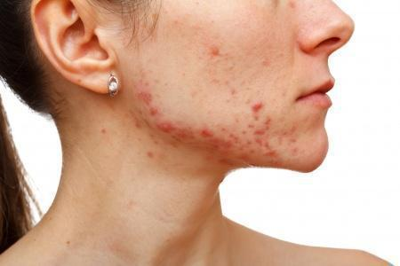 Why Do I Have Acne When I'm an Adult?