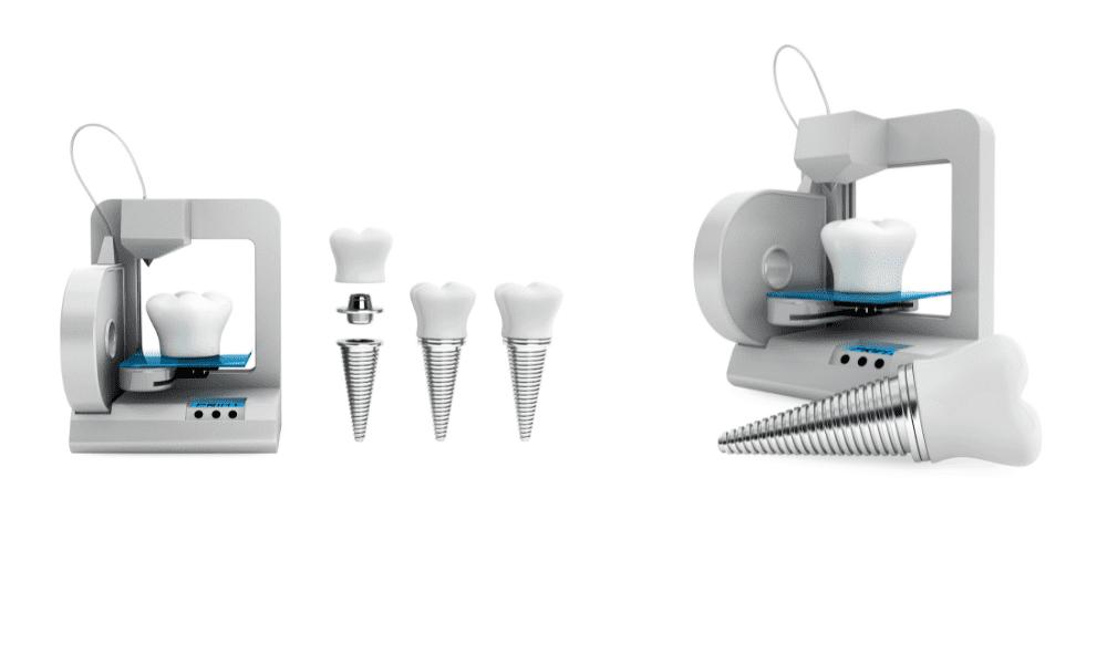 Dental Metallic Implant