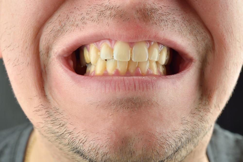 Help! My Teeth are Yellow