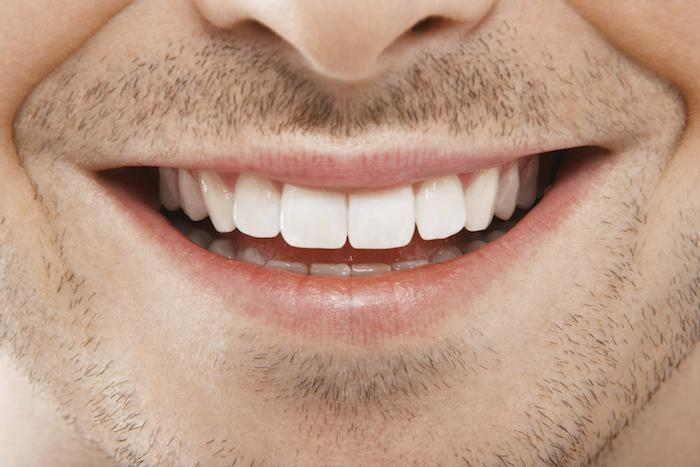 How Zoom!® Whitens Your Teeth