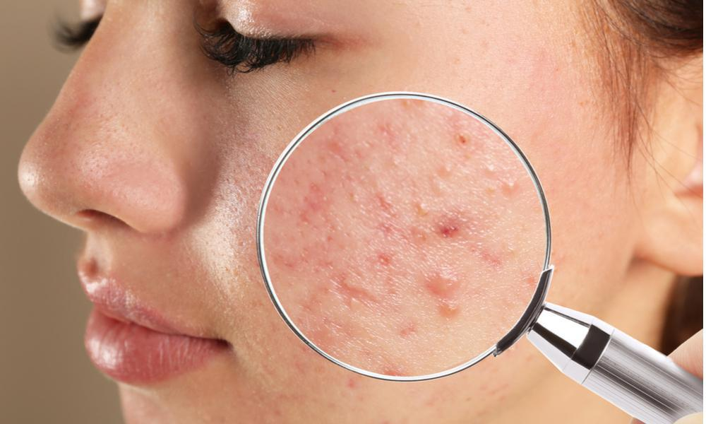 Your Skin Microbiome and Acne